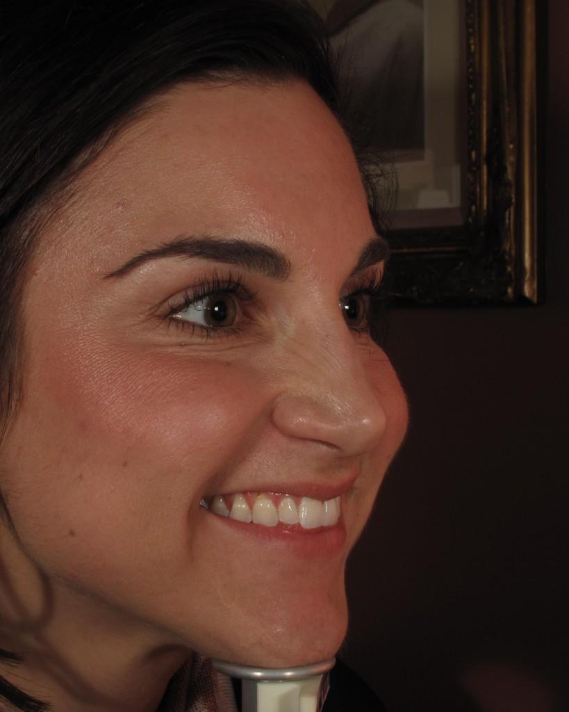 Botox Specials In Virginia Beach